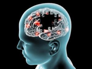 מחלות מוח כמו אלצהימר